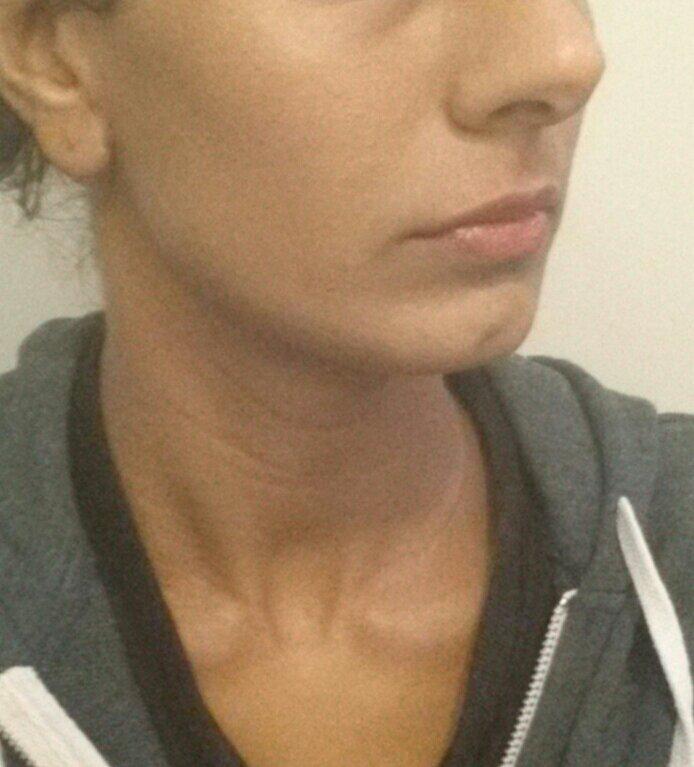 steroid cream skin discoloration