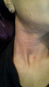 Current Skin